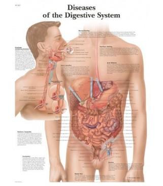 Bolesti probavnog sustava (1431)