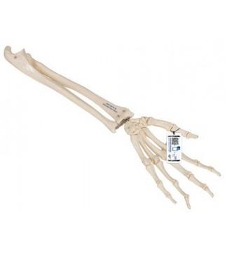 Kosti ruke - podlaktica