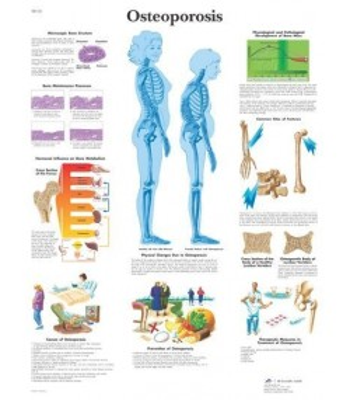Osteoporoza (1121)