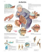Artritis (1123)