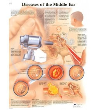 Rinitis i sinusitis (1251)