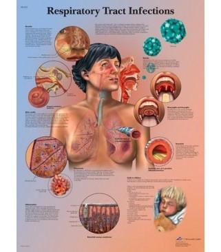 Infekcije dišnih putova (1253)