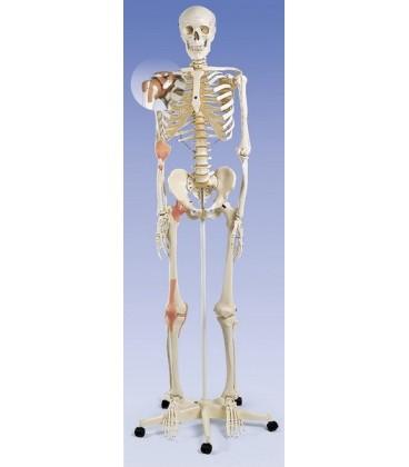 Kostur sa prikazom ligamenata
