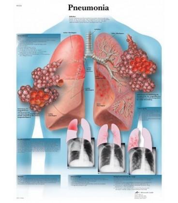 Upala pluća (1326)