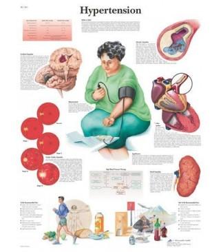 Hipertenzija (1361)