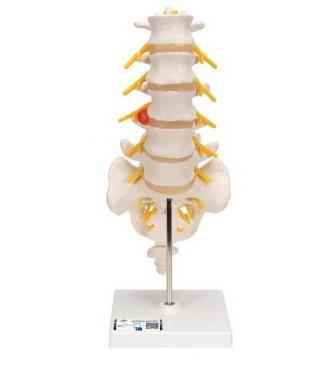Lumbalna kralježnica+prolapsa