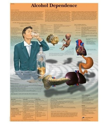 Alkoholizam (1792)