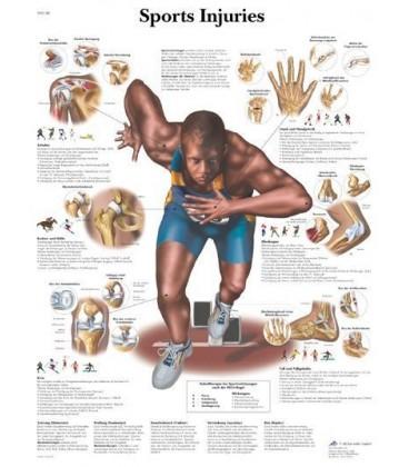 Sportske povrede (1188)